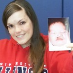 Gina Davis holds a photo of her as a baby with a cleft lip and palate.