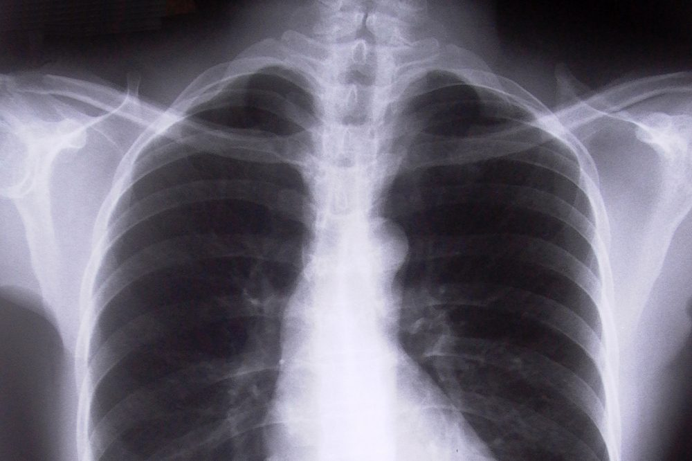 x-ray of a human chest