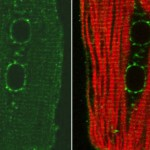 Heart muscle cells labeled for a specific protein (green) and the cytoskeleton (red).