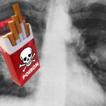 "cigarette box labeled ""poison"" in front of a chest x-ray"