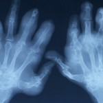 x-ray of arthritic hands