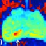 MRI and FROC imaging of prostate cancer (F)