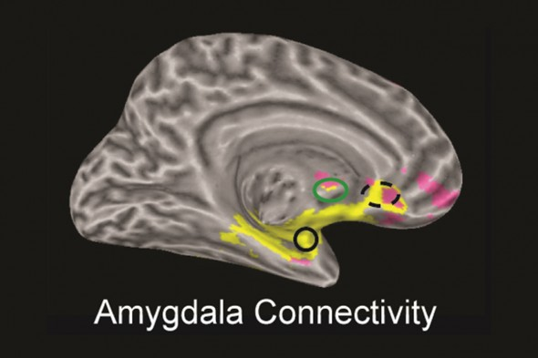 Amygdala Connectivity