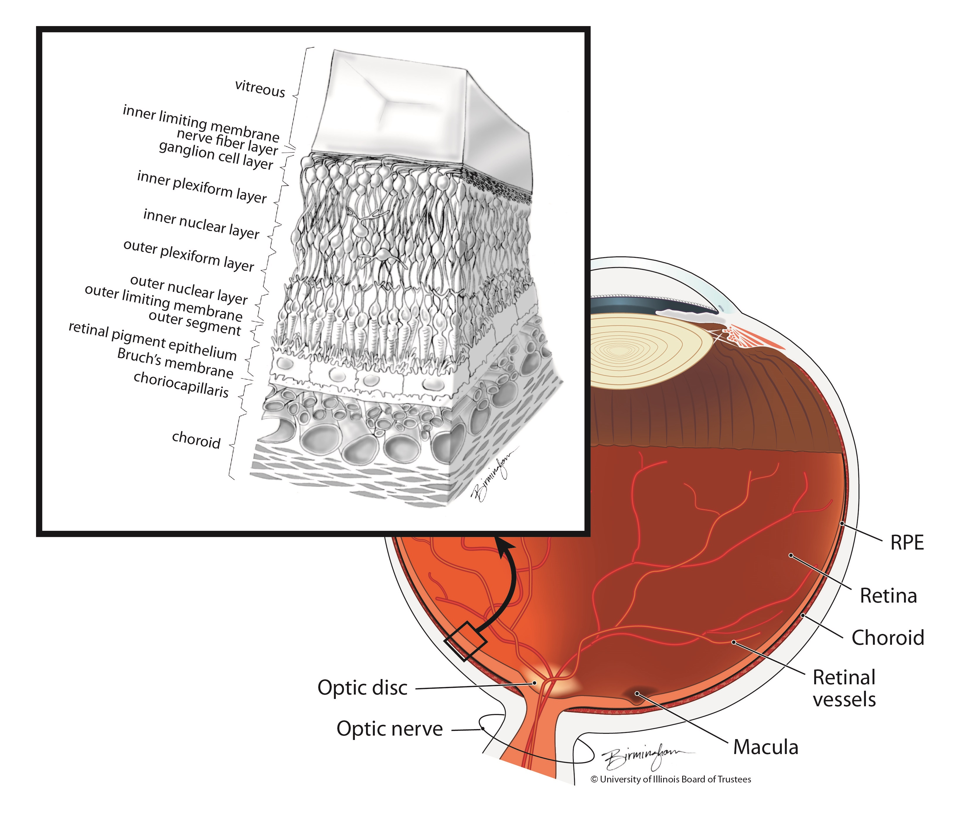 Clinical Trial Tests Cord Blood Cells To Treat Macular Degeneration