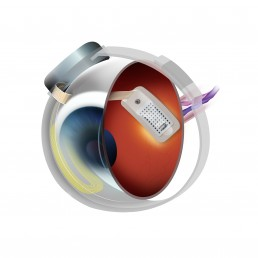 Argus Retinal Implant diagram