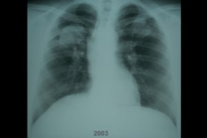 Researchers identify spike in severe black lung disease among former US coal miners