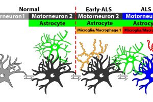 Researchers describe new ALS biomarkers, potential new drug targets