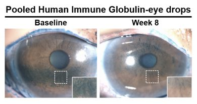 Patients treated with antibody-based eye drops