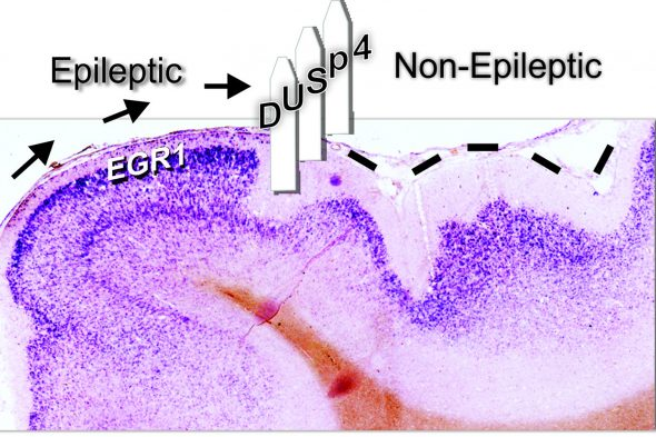 The DUSP4 protein is located on the border between epileptic and