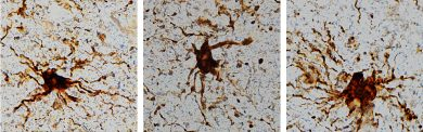 'Zombie' cells come to life after death of the human brain. (Image: Dr. Jeffrey Loeb/UIC).